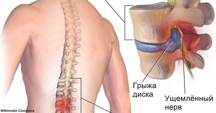 Межпозвоночные грыжи тазобедренный сустав
